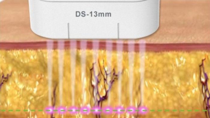 HIFU fókuszált ultrahangos kezelés folyamata
