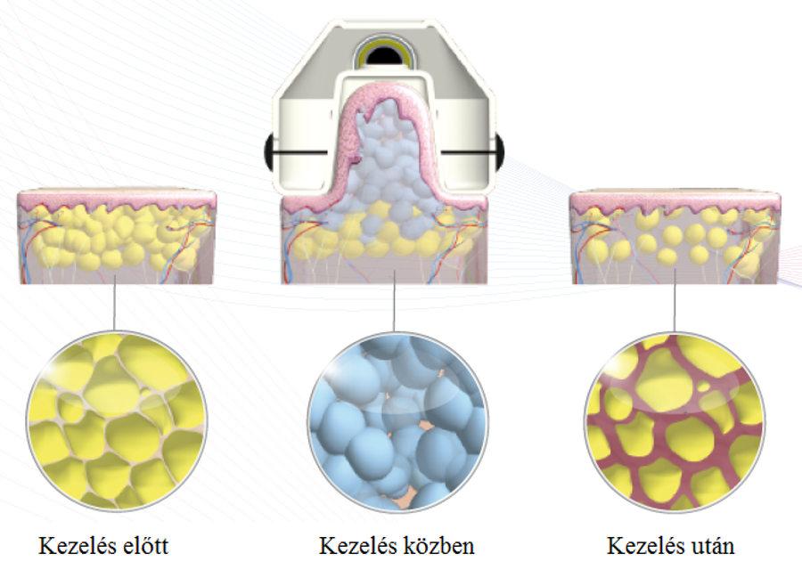 vákuumos testkezelés folyamata, NewAge Kombinált zsírfagyasztó Lipo lézerrel, NewAge Vákuumos Zsírfagyasztó+Kavitáció+RF+Lipo