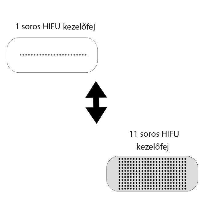 4d-hifu-3